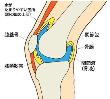 「膝に水が溜まる」の画像検索結果